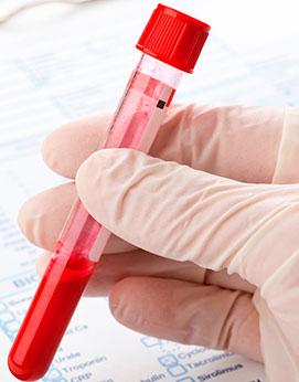 Test clínicos centro diagnóstico Calderón